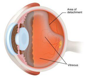 Area of Detachment & vitreous