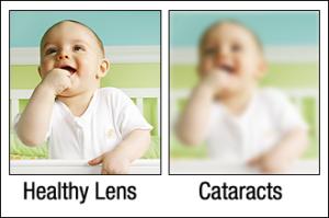 Healthy Lens vs. Cataracts